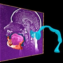 singing resonance vocal tract MRI from movie about how to sing